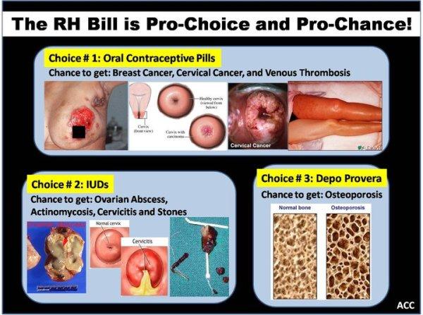 Oral Contraceptive Pills, IUD, Depo Provera